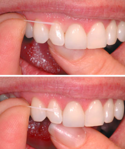 floss teeth