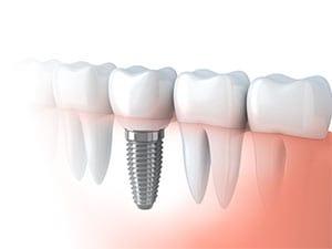 replacing missing teeth, dental implant