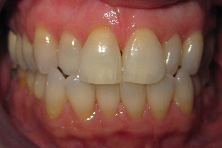 Braces, invisalign, straight teeth